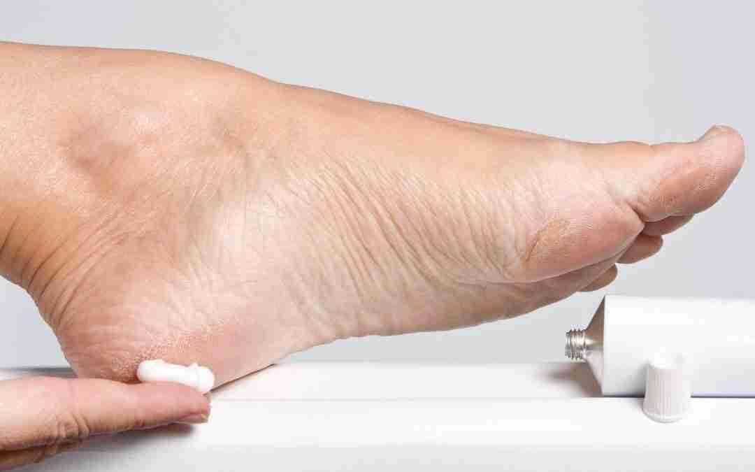 Best Lotion For Diabetic Dry Skin